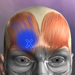 Muscle Trigger Point Anatomy Android